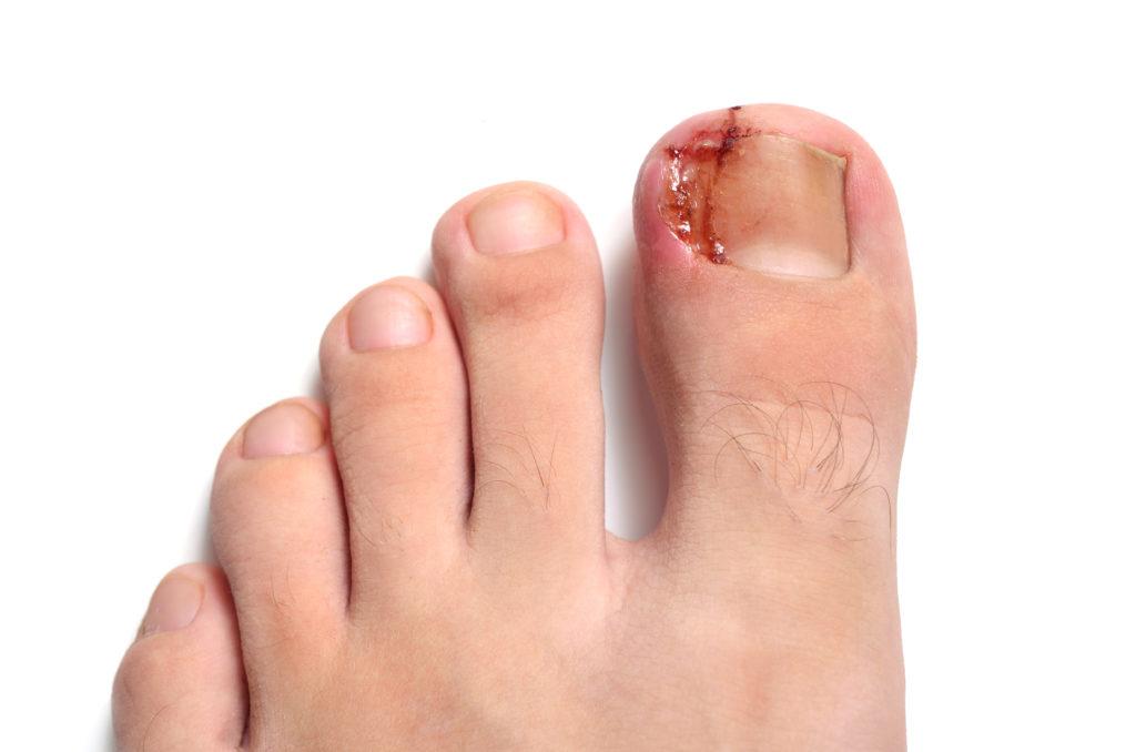 uña encarnada, cirugía uñas