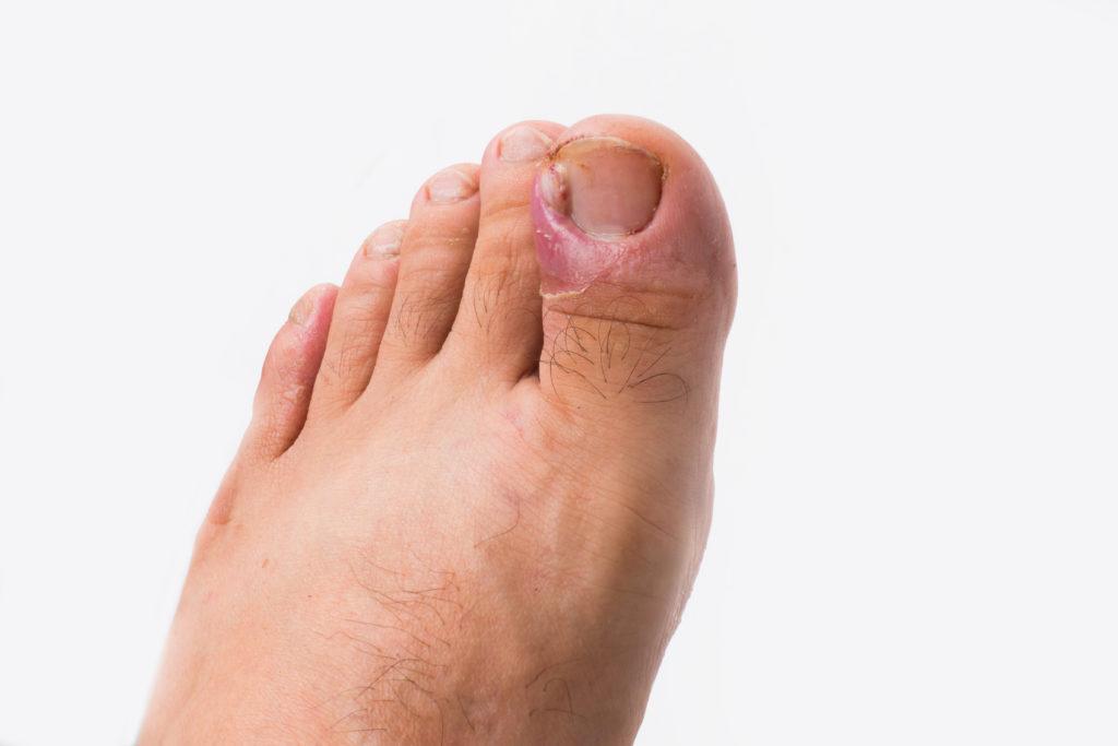 cirugía uñas, uña encarnada
