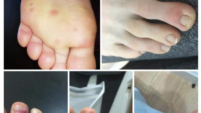 Photo of Alteraciones en los pies debido a infección por covid-19.