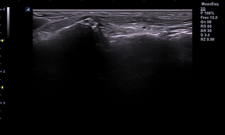 Photo of Esguince en ligamento calcáneo-cuboideo