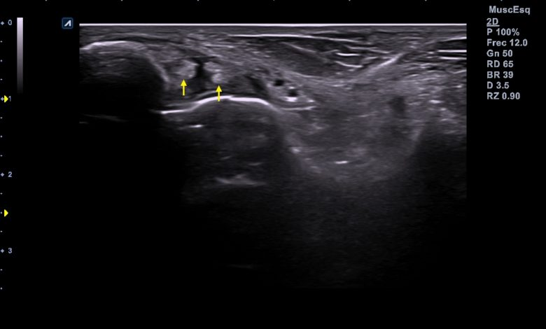 Photo of Rotura completa del ligamento peroneo astragalino anterior
