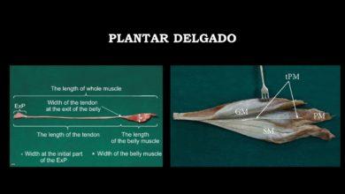 Photo of Músculo plantar delgado y su relación con patología del Aquiles y tibial posterior.